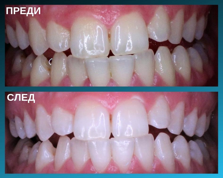Снимки на зъбите на пациент преди и след като са били избелени зъбите му.
