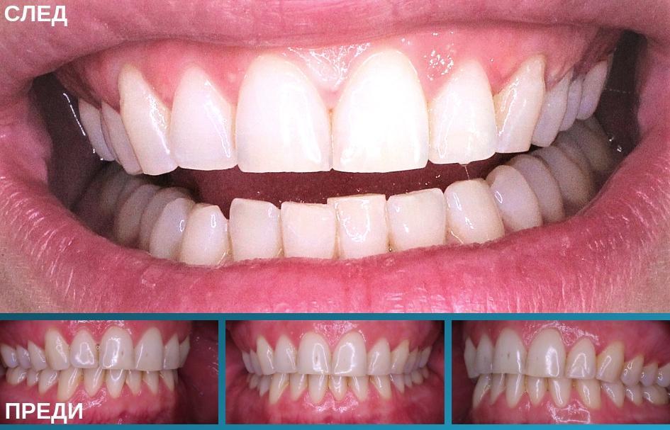 Четири снимки на пациент преди и след избелваща процедура