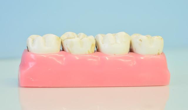 изкуствен модел на зъби