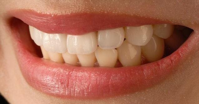 Усмивка на жена с порцеланови фасети