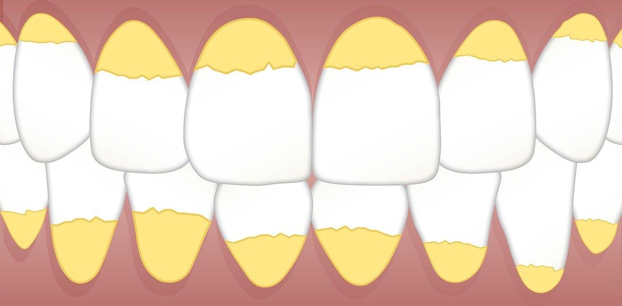 Натрупан зъбен камък по предните зъби
