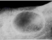 резидуална киста