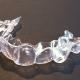 Алайнер - прозрачна шина за зъби