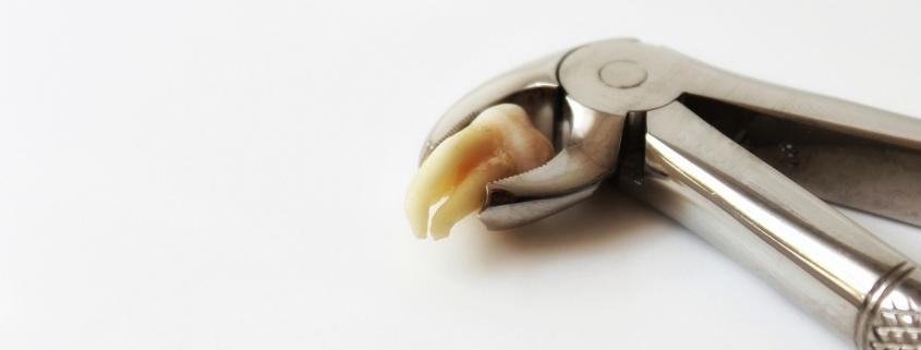 Клещи с изваден зъб
