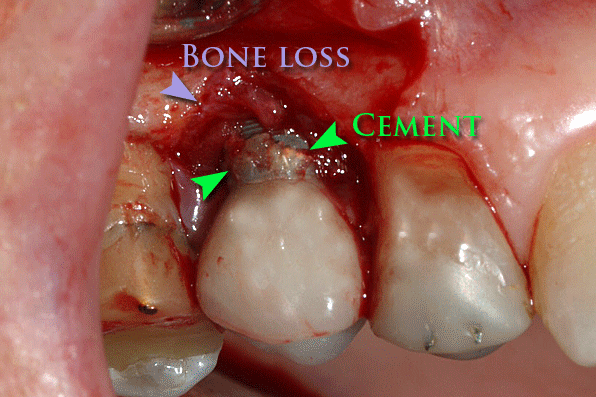 Периимплантит на зъб